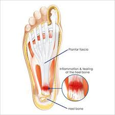 Location of planter fasciitis in the foot